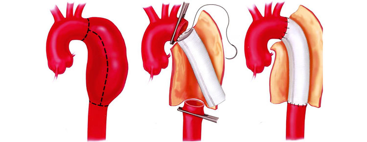 Open Surgery Treatment of an Aortic Dissection